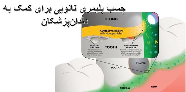 چسب پلیمری حاوی نانوذرات برای کمک به دندانپزشکان