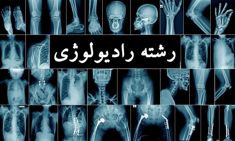 رشته رادیولوژی