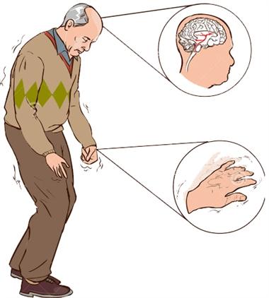 تشخیص بیماری پارکینسون